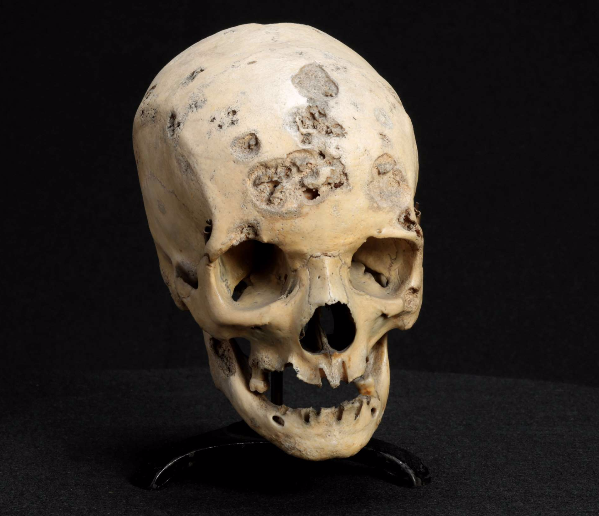 Skull with Syphilitic Necrotic