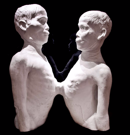 Death cast of Chang and Eng Bunker,The Mütter Museum