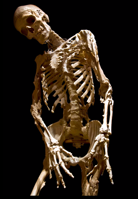 HarryEastlackSkeleton