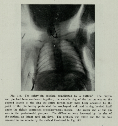 X-Ray of patient who swallowed safety pin