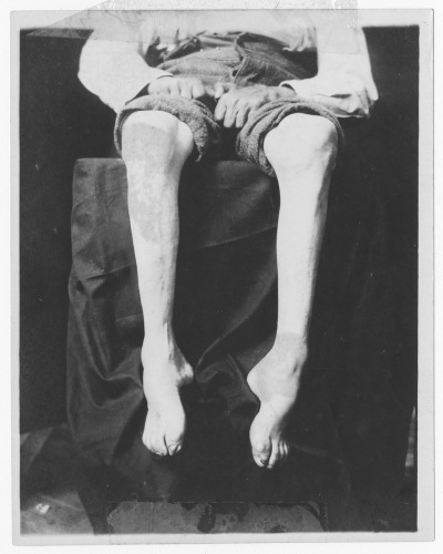 Image of a patient's legs with chronic anterior poliomyelitis, Source: Historical Medical Library of the College of Physicians of Philadelphia