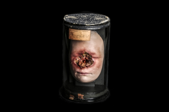 Wax model of a syphilitic face