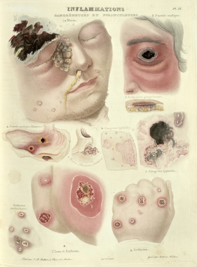 Depictions of gangrene's progress from an 1835 book Source: Historical Medical Library of the College of Physicians of Philadelphia