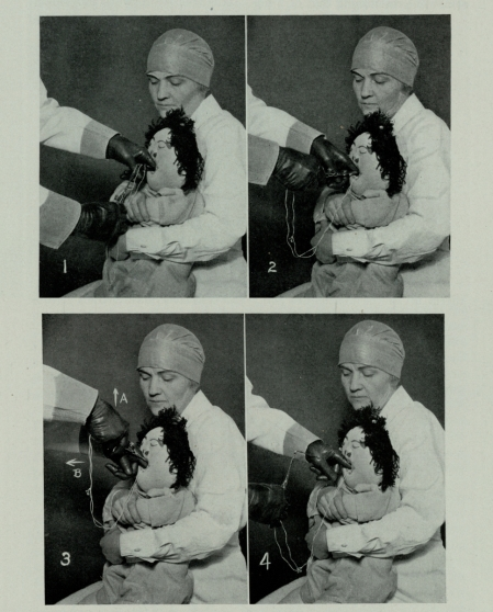 Chevalier Jackson demonstrating Michelle the Choking Doll, Historical Medical Library of the College of Physicians of Philadelphia