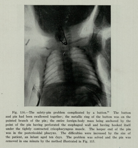 X-ray showing safety pin and button in a 10-day-old infant's airway, 1934, Historical Medical Library of the College of Physicians of Philadelphia