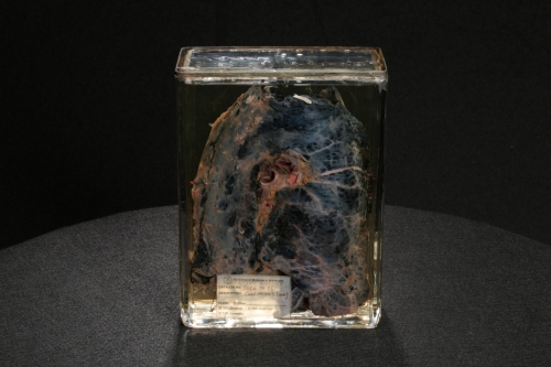 Encased coal miner's lung