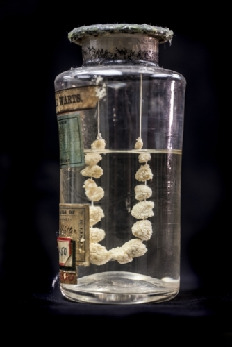A clear glass jar containing a set of genital warts connected together by string